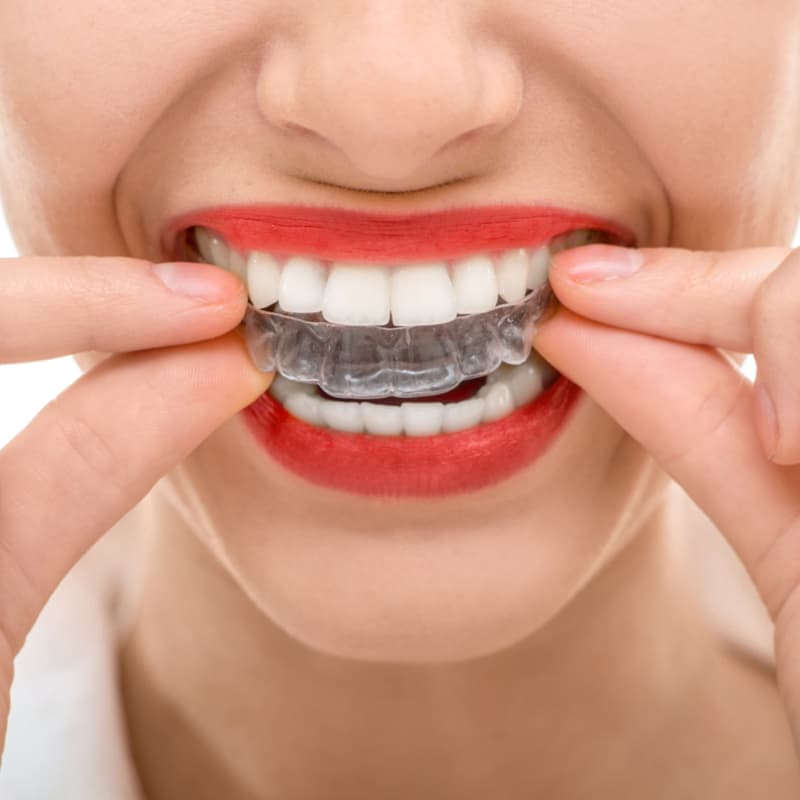 achieve a straighter smile with basalt dentistry invisalign